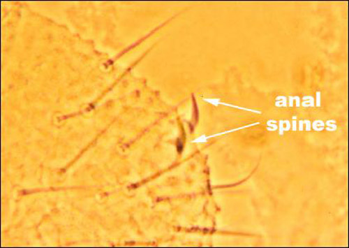 Anal spines of Willemia anophthalma